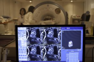 CIC-IT Nancy, IRM 3T tests sur sujet ŽquipŽ de capteur dŽtecteurs de mouvements.