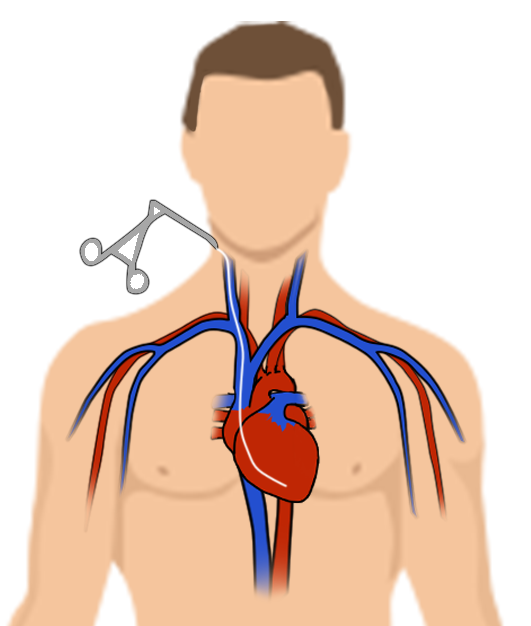 biopsieendomyocardique