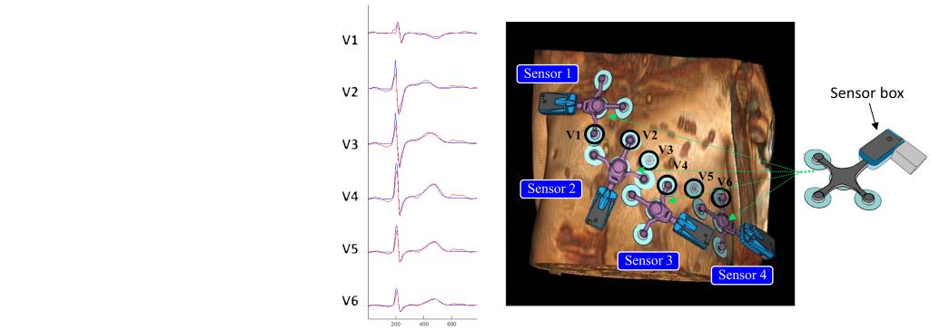 Un système électrocargiographique (ECG) à 12 dérivations, compatible IRM